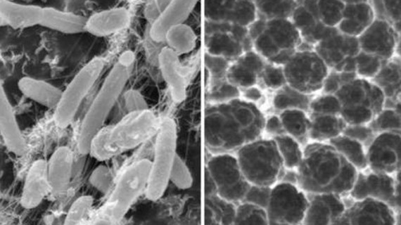 Bacteria care ne va salva planeta