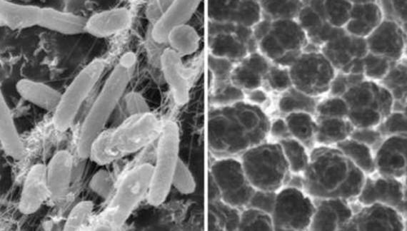 O bacterie extrem de periculoasă se propagă în spitale. Este înrudită cu stafilococul auriu